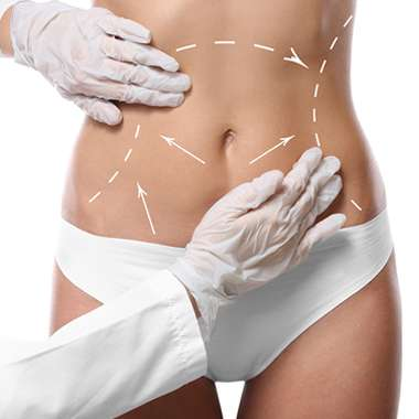 abdominoplasty-cosmetic-surgery